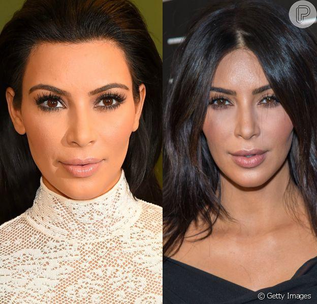 Kim Kardashian é uma das famosas que aderiu a bichectomia, técnica que afina o rosto