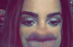 Anitta ironiza preenchimento labial em vídeo: 'Deu errado, o que faço agora?'