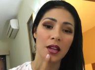 Simaria mostra joelho machucado após queda durante show: 'Estou bem'. Vídeo!