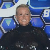 Xuxa recorre a fono ao descobrir calo nas cordas vocais: 'Esforço sem me cuidar'
