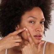 Pele com espinhas e cravos? Confira receitas caseiras para tratar a acne em casa