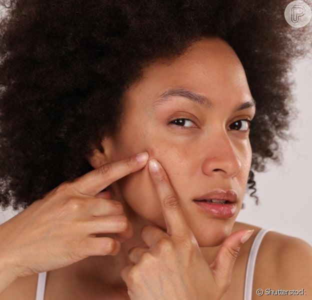 Pele acneica: receitas caseiras para tratar as espinhas