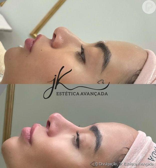 Rafaella Santos afinou e arrebitou nariz em novo retoque de harmonização facial