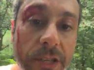 Alexandre Nero exibe 'ferida' em cena de 'A Regra do Jogo': 'Romero sangrando'