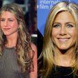 Jennifer Aniston já afirmou, há alguns anos, ter feito uma operação no nariz, mas para corrigir um desvio de septo nasal, de acordo com ela