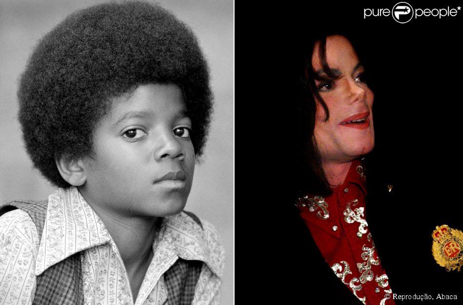 A primeira cirurgia feita por Michael Jackson foi no nariz. De acordo com a mãe do cantor, Katherine, ela até tentou convencê-lo a não fazer, mas o filho era viciado em plásticas