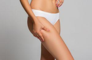 Como combater a celulite: dermatologista dá 4 dicas de tratamentos