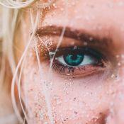 4 tipos de peeling químico para recuperar a pele dos danos causados pelo Verão
