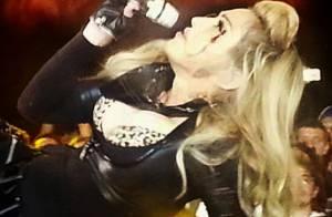 Madonna leva soco no rosto e canta sangrando em show na Colômbia