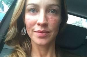 Luana Piovani exibe rosto inchado em foto: 'Depois de ter queimado as sardas'