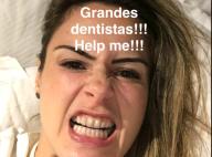 Ex-BBB Ana Paula Renault pede tratamento dentário na web: 'Olha a cor'. Vídeo!