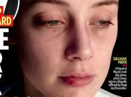 Amber Heard, ex-mulher de Johnny Depp, surge com rosto machucado em novas fotos