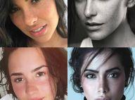 Sardas naturais ou fake? Confira 30 famosas que esbanjam charme com as pintinhas
