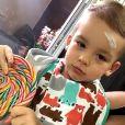Alexandre, de 2 anos, machucou a testa brincando nesta quarta-feira, 29 de junho de 2016