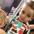 Filho de Ana Hickmann machucou a testa enquanto brincava