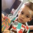 Ana Hickmann registrou o momento em que o filho, ferido na testa, segura, com carinha triste, um pirulito