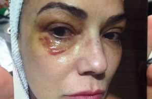 Luiza Brunet aparece com olho roxo em foto após agressão: 'Cuidando das marcas'