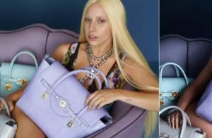 Lady Gaga aparece com hematomas em fotos não tratadas da campanha da Versace