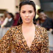 Demi Lovato está internada em Hollywood para tratar overdose de droga, diz site