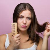 Alopecia por tração: Karla Assed explica queda de cabelo provocada por penteados