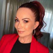 Solange Almeida admite uso de botox: 'Coloco na testa e na área dos olhos'