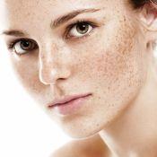Make com sardas: maquiadora ensina a valorizar as marcas ao invés de cobri-las