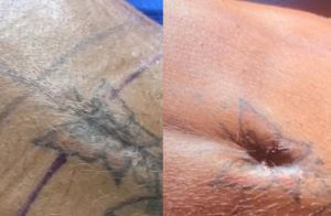 Gretchen mostra resultado de nova cirurgia estética na barriga: 'Surpreendente'