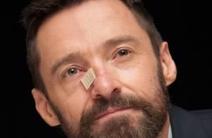 Hugh Jackman é diagnosticado com câncer de pele pela terceira vez em 1 ano