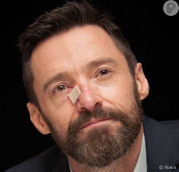 Hugh Jackman foi mais uma vez diagnosticado com câncer de pele