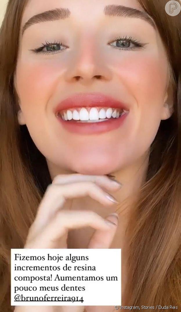 Duda Reis muda sorriso e compartilha resultado de procedimento estético