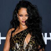 Flagra de Rihanna com hematoma no rosto preocupa: 'Capotou de scooter elétrica'