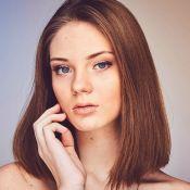 Como cuidar das olheiras? Conheça os tipos e os tratamentos certos
