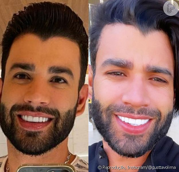 Cabelo de Gusttavo Lima: cantor retoma visual curto após comparações na web