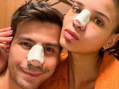 Sertanejo Mariano faz rinoplastia com Jakelyne e mostra pós-cirúrgico: 'Nariz engessado'