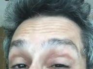 Alexandre Nero deixa bumbum à mostra em hospital: 'Não estou doente'