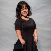 Juliana Caldas controla peso por conta do nanismo:'Joelho e coluna não aguentam'