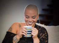 Careca e feminina: cabelo raspado é tendência entre mulheres. Conheça histórias!