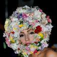 Lady Gaga está se recuperando de uma cirurgia no quadril